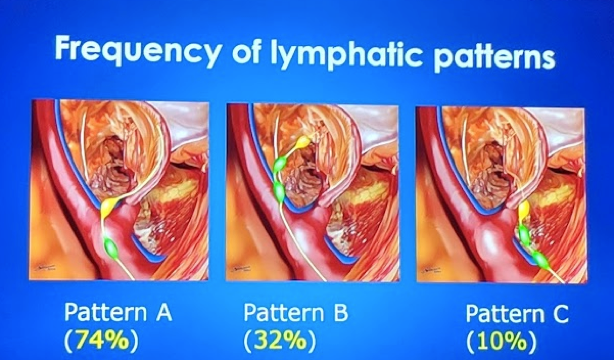 Frequency of lymphatic patterns