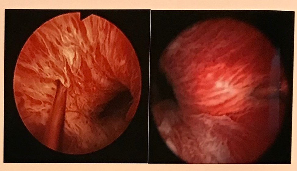 UroToday_AUA2018_OnabotulinumtoxinA injection to the external urethral sphincter