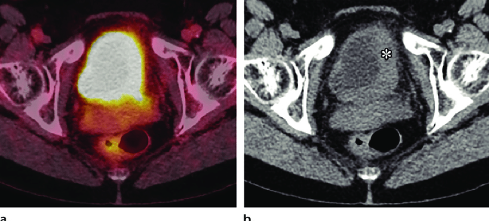 Siu 2019 Pet Imaging In Renal Cell Carcinoma And Urothelial Cancers