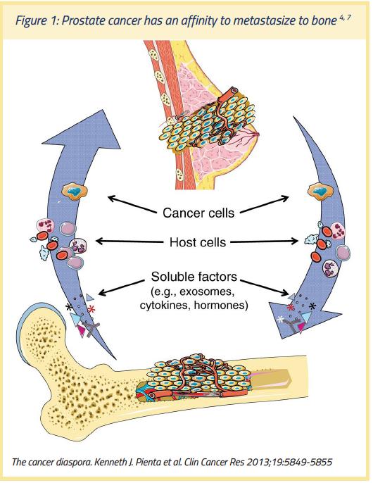 adenocarcinoma prostatico 4 4 6