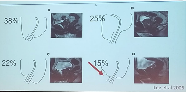 Erus 2018 Anatomical Key Elements And Basics Of Nerve Sparing Prostatectomy Graefen