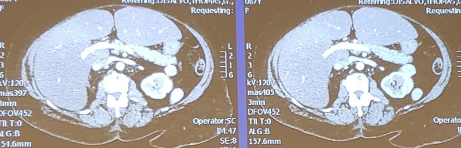 UroToday_ASCOGU2019-Kidney Cancer Case-Based Panel- Localized Disease - 5.png