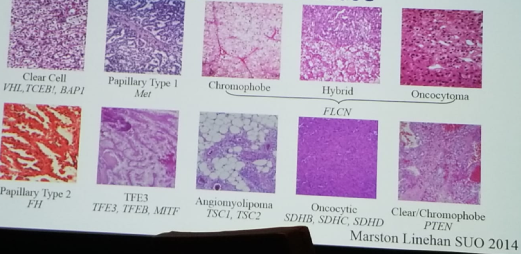 UroToday CUOS19 Kidney Cancer is a Heterogenous Disease