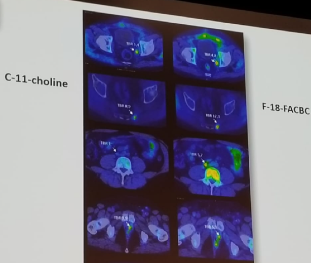 UroToday EAUPCa18 Comparison of choline and fluciclovine PETCT imaging