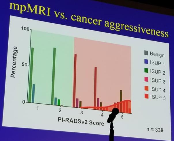 cancer de prostata (pi-rads 4)