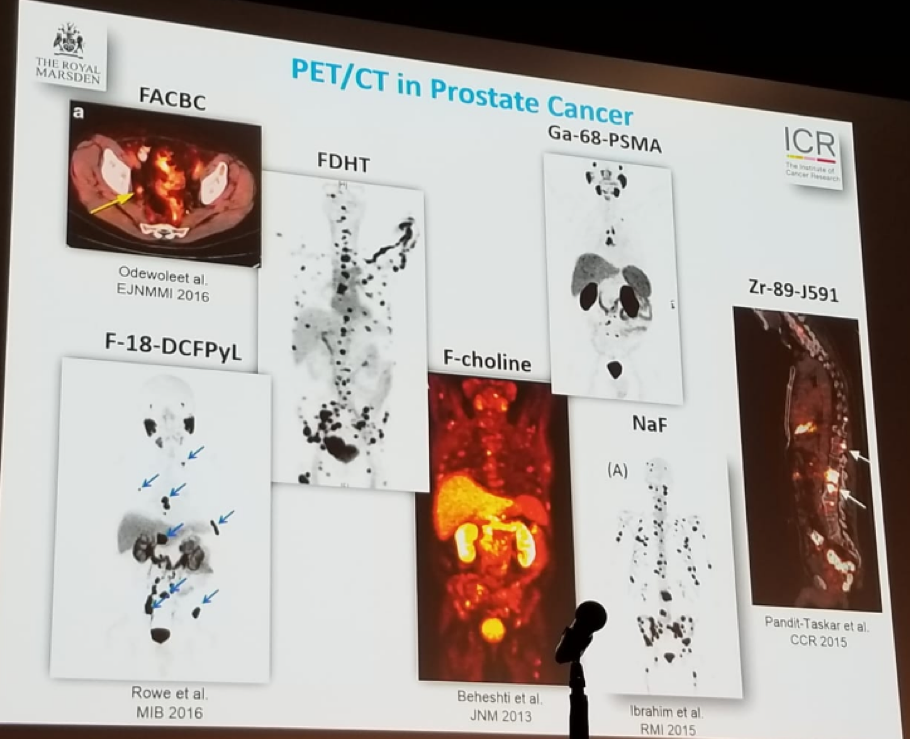 UroToday EAUPCa18 PETCT imaging in the diagnosis of prostate cancer