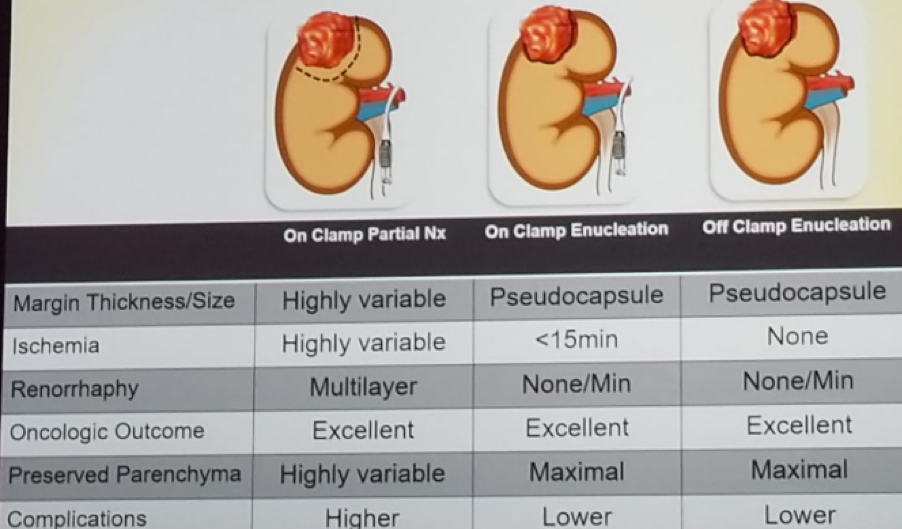UroToday Enucleo Resection vs. Wedge Resection for Partial Nephrectomy