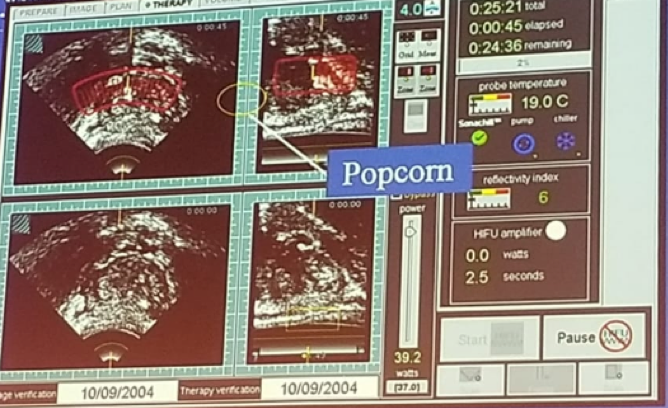 UroToday FOIU2018 HIFU therapy popcorn effect