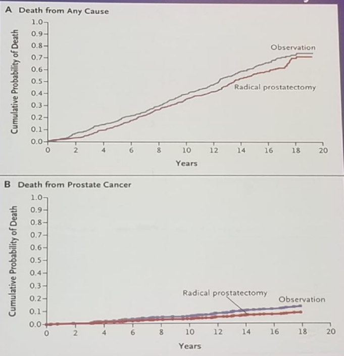 UroToday FOIU2018 Kaplan Meir plots of mortality comparing surgery and observation for prostate cancerl