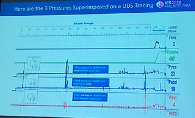UroToday ICS2018 LUT primary urodynamic pressures