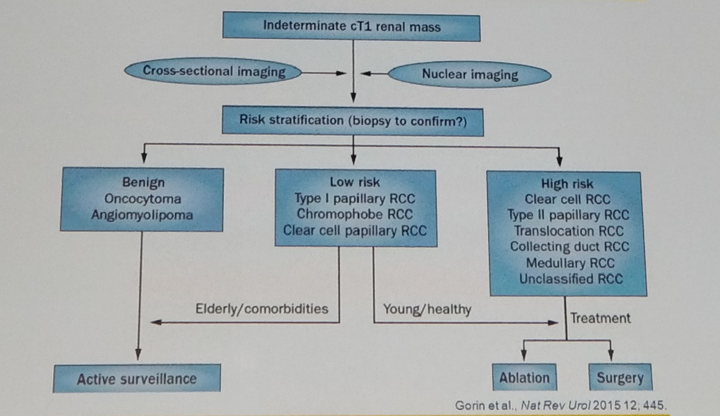 UroToday WCE2018 Proposed algorithm for active surveillance