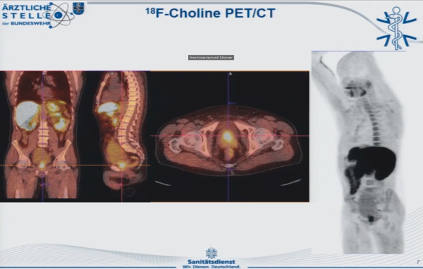 Choline PET CT Scan Image of Anterior Prostate