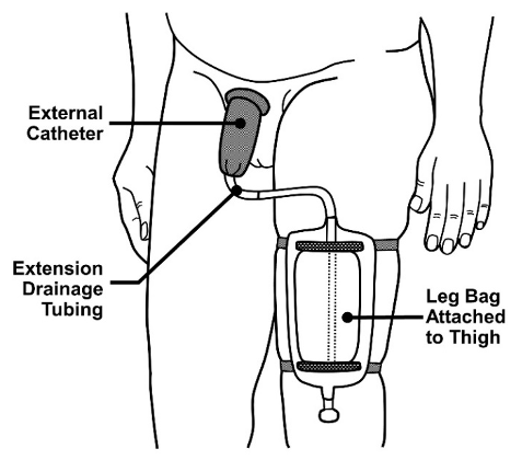 external urinary catheters