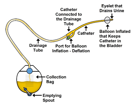 Indwelling Catheter Illustration