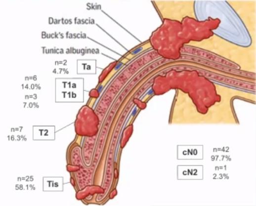 onkology penis