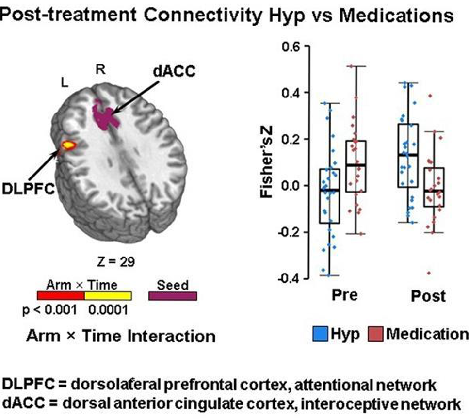 post treatment connectivity hyp vs medications