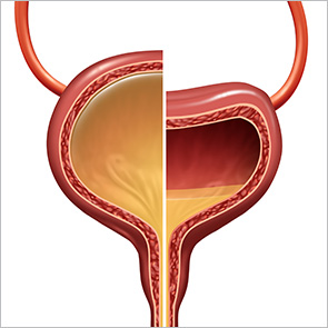 Split image of a normal and neurogenic bladder