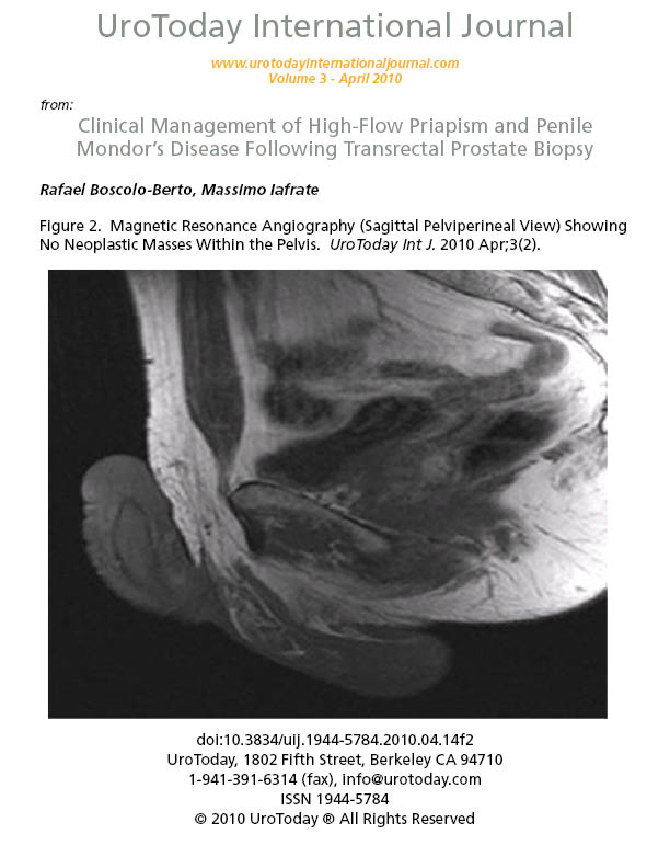 Clinical Management Of High Flow Priapism And Penile