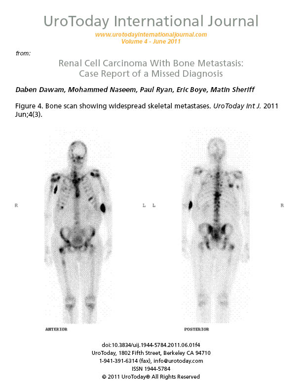 Renal Cell Carcinoma With Bone Metastasis Case Report Of A Missed Diagnosis