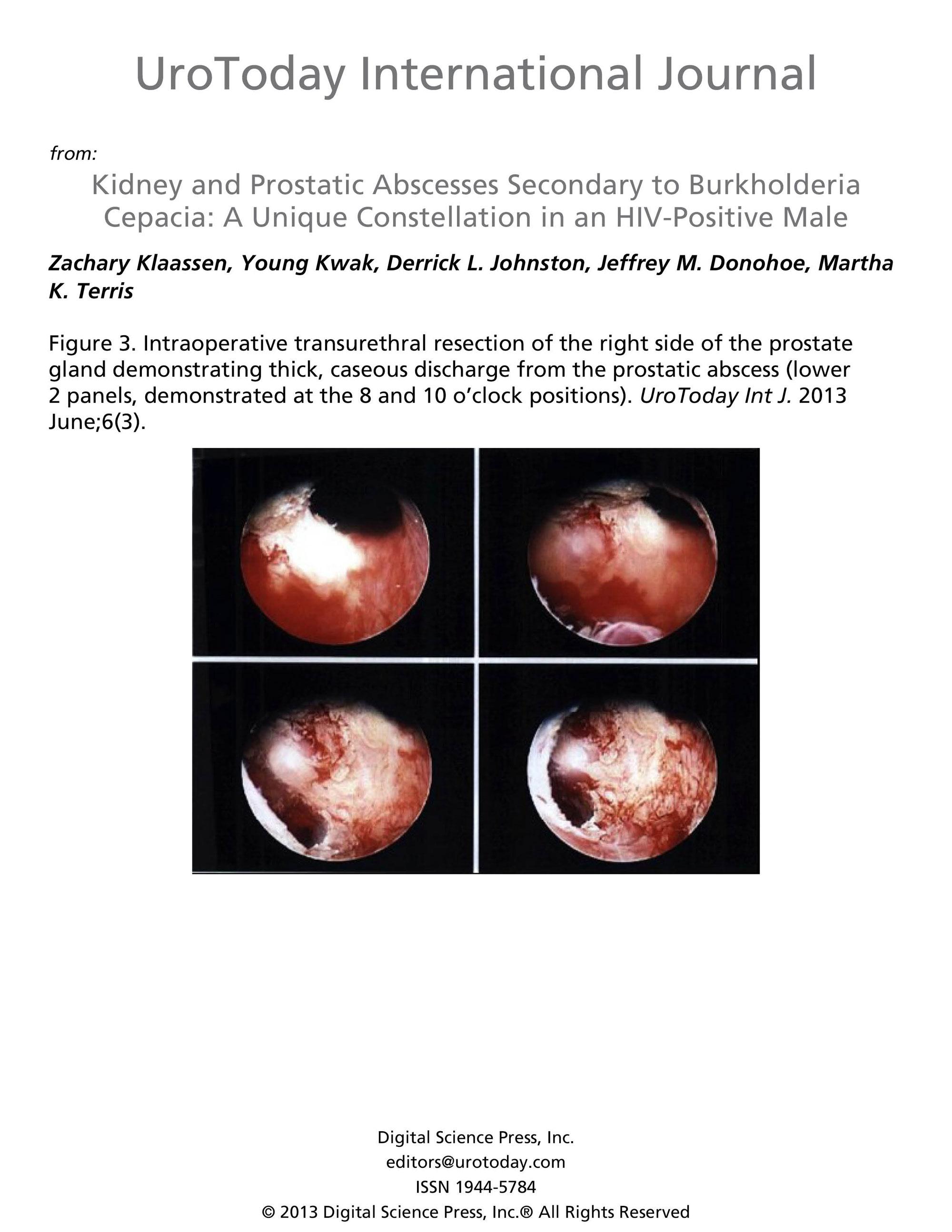 adenocarcinoma prostate gleason 9( 54) Prostatitisem van hogyan éljek