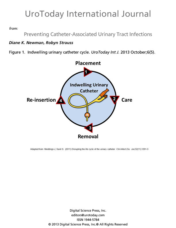 catheter associated urinary tract infection When you have an indwelling urinary catheter, you are more likely to develop a urinary tract infection uti - catheter associated urinary tract infection.